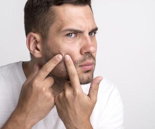 Acné granos dermatología jovenes euroclinicas vera almería