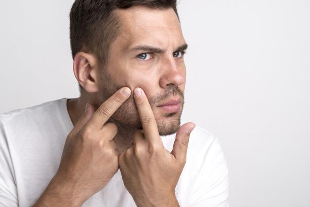 ¿Qué es el acné? | Te contamos cómo se elimina