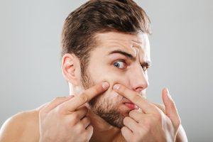 acne euroclinicas dermatologia tratamiento especialidades vera