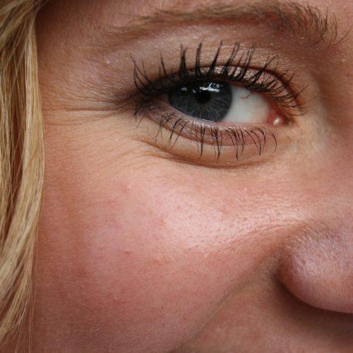 arrugas cremas antiarrugas euroclinicas de especialidades clinica medicos vera almeria