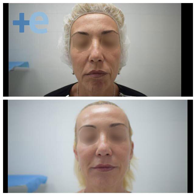 antes y despues ultherapy arrugas euroclinicas de especialidades vera almeria