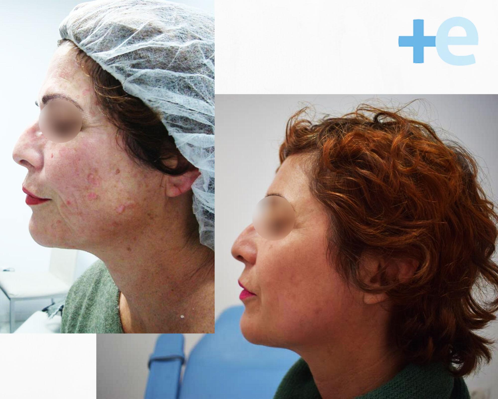 antes y despues ultherapy manchas euroclinicas de especialidades vera almeria