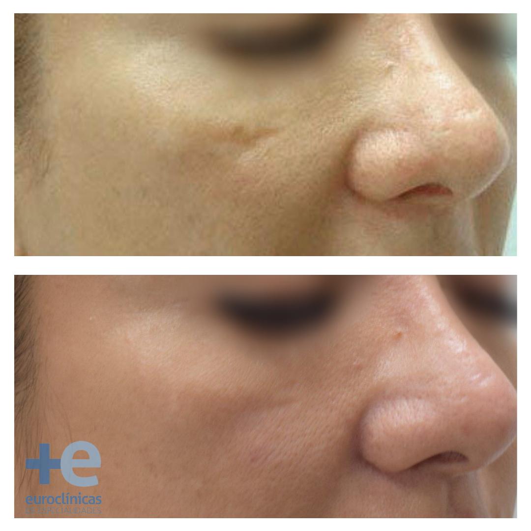 antes y despues laser co2 euroclinicas de especialidades Vera Almeria