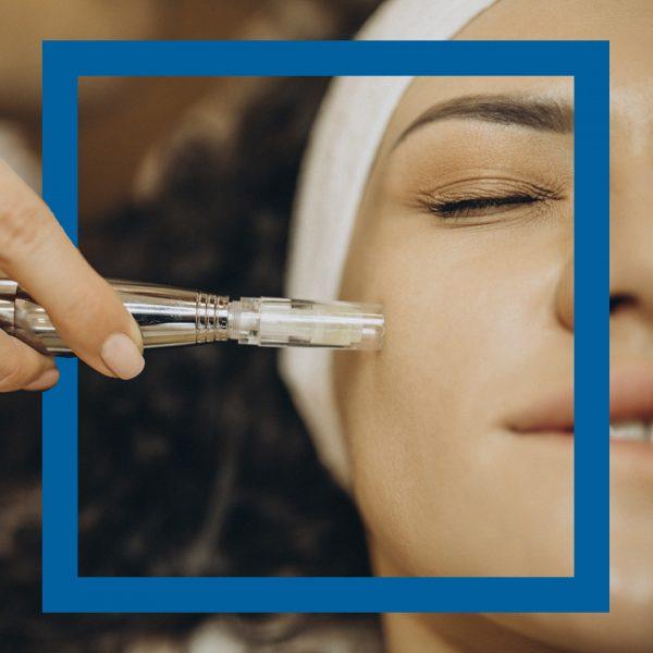 Microneedling facial Euroclinicas vera almería